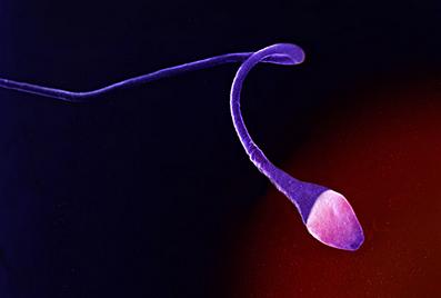 男人想要做精液检查需要知道4件事