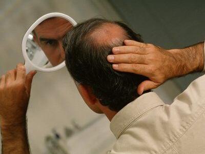 秋季脱发频发 男人如何应对
