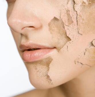 冬季皮肤干燥奇痒?原是这6大恶习在作怪