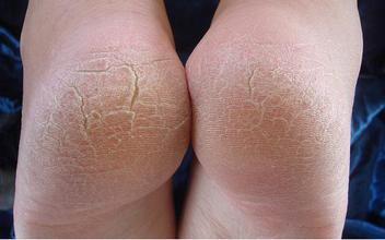 脚后跟皲裂的治疗方子,防复发