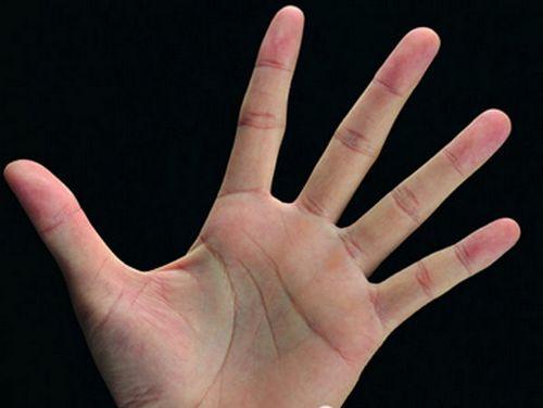 看手掌样色可辨识身体健康信息 你懂吗