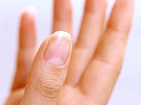 指甲出现白点、易断裂…5状况健康亮红灯