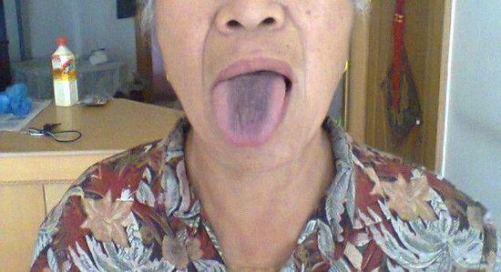 这种舌苔预示着胃病 要注意养胃了