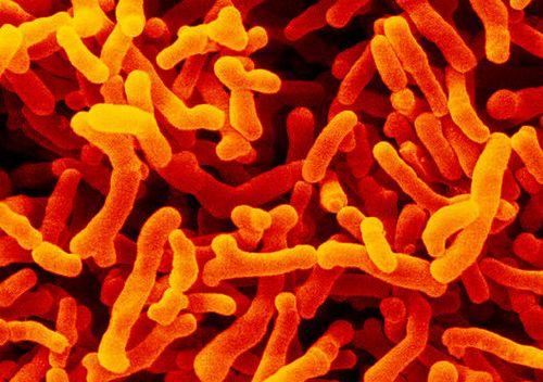 双歧杆菌帮你清肠、通便、防口臭