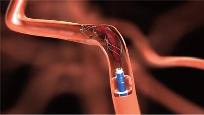 血管保养的小妙招,让你的血管越来越年轻!