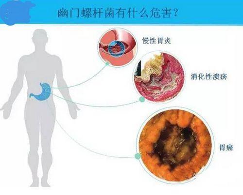 亦舒堂:夏季养胃谨防幽门螺旋杆菌