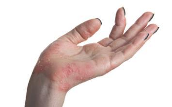 湿疹如何根治?这篇文章讲得很详细