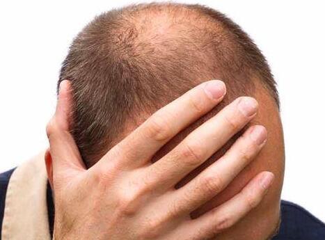 有雄性秃吗?拯救秃顶、脱发,绝招在这里