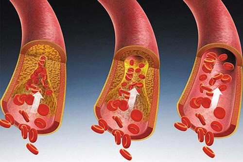 高血脂:这4类情况必须吃药