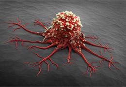 七大不良习惯或增加患癌风险