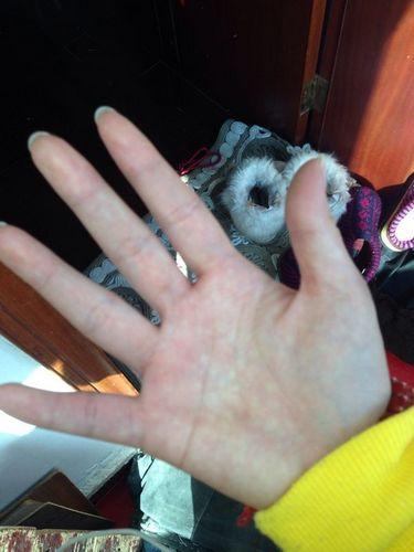 有没有生病,看手掌颜色就知道