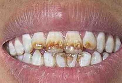 7种常见色素牙齿是病,看看你中招没有
