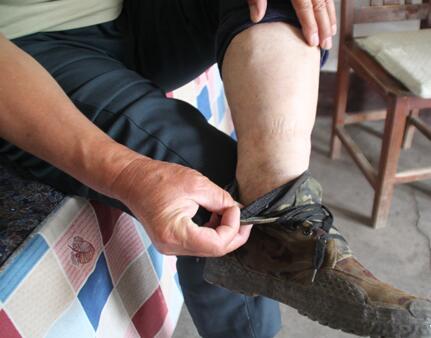 老寒腿能不能泡脚?需要注意什么呢?