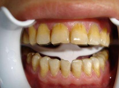 牙齿为什么总是会黄黄的呢?
