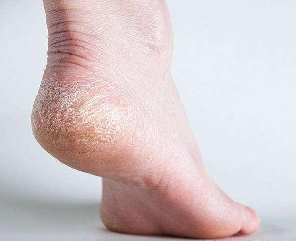 脚跟干裂别小看,还可能是疾病的信号