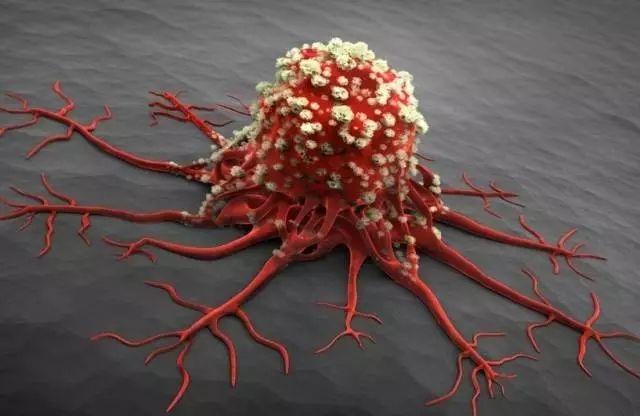 癌症也会挑人,常吃这几种食物不给癌症有机可乘